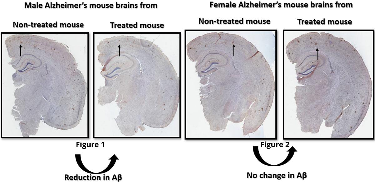 Comparaison des cerveaux masculins et féminins étudiés